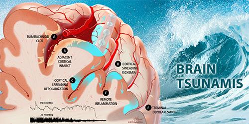 Brain tsunami's